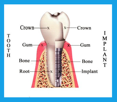 Dental Implant Information - San Jose Costa Rica