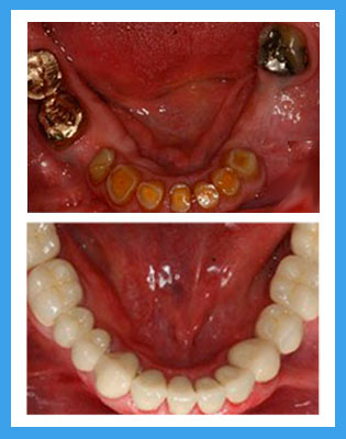Dental Implants Before and After Photo
